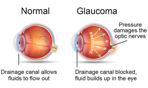 A chart of how Glaucoma works.