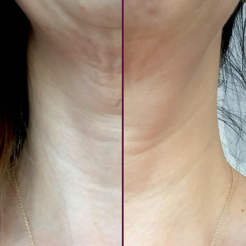 Exhilarance before and after neck