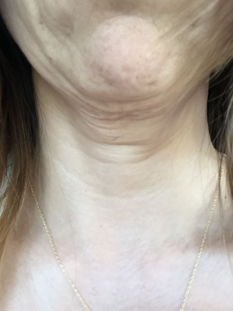 weight loss skin neck
