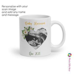 Personalised 11oz Mug Scan Cup || GIFT || Ultrasound