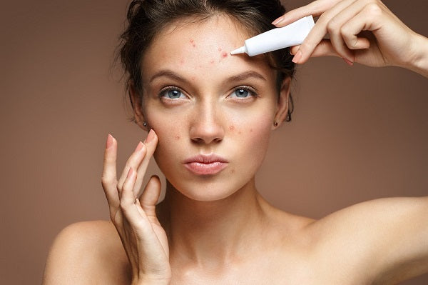 acne treatment for skin