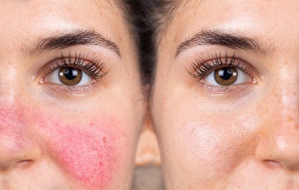 rosacea treatment for skin