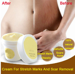 Cream for stretch marks and scar remover