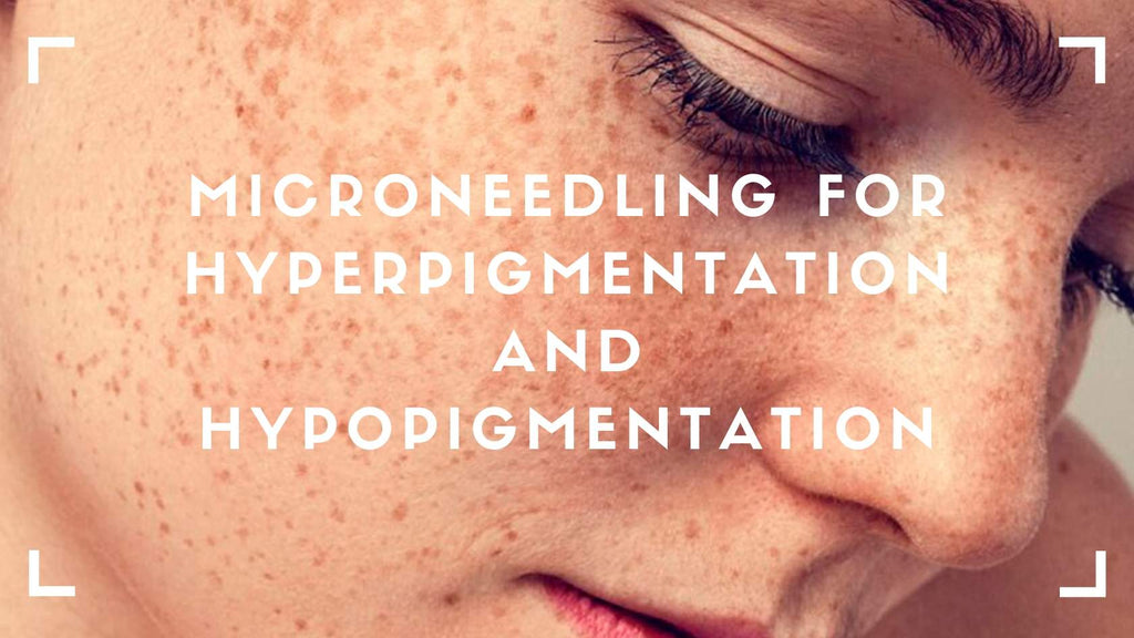 Microneedling for Hyperpigmentation and Hypopigmentation