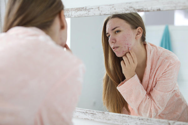 does drinking water help acne: a woman checking her pimples