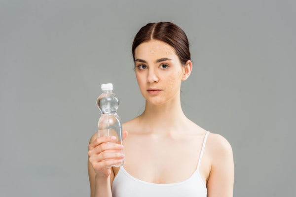 does drinking water help acne: a woman holding a bottled water