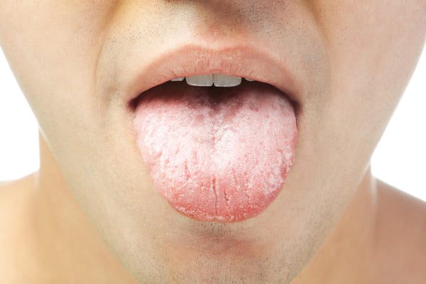 White tongue dehydration: Close up of a man showing his tongue