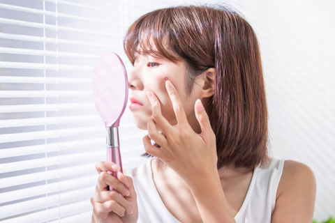 Woman finding ways to cure acne