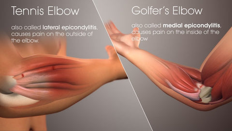 Tennis Elbow Golfers Elbow CBD