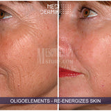 Hyper-Pigmentation Treatment By Medidermik