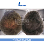 Restructuring Solution For Hair Growth By Denova