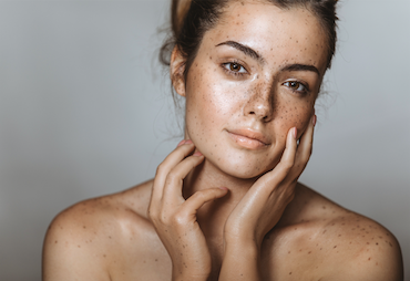 Stubborn Pigmentation and Melasma