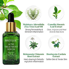 Load image into Gallery viewer, (M342)Acne Treatment Serum, BREYLEE Tea Tree Clear Skin Serum for Clearing Severe Acne, Breakout, Remover Pimple and Repair Skin (17ml,0.6oz)