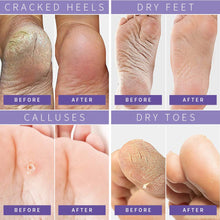 Load image into Gallery viewer, (T507) Foot Peel Mask Dry Dead Skin Calluses Remover Exfoliating Repair Rough Cracked Heels for Soft and Smooth Skin Feet Moisturizing Care Treatment Foot Mask Fit