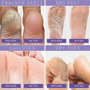 (T507) Foot Peel Mask Dry Dead Skin Calluses Remover Exfoliating Repair Rough Cracked Heels for Soft and Smooth Skin Feet Moisturizing Care Treatment Foot Mask Fit