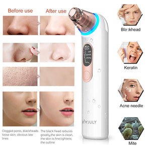 (Y700)Blackhead Remover Pore Vacuum Cleaner,Facial Blackhead Vacuum Blackhead Removal Acne Comedone Extractor Tool Kit with LED