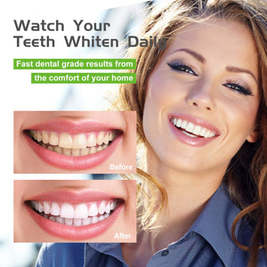 (Y055)Teeth Whitening, Teeth Whitener, Bright Teeth Whitening Kit, 4 Syringes of 5ml Professional 35% Carbamide Peroxide Tooth Whitening Gel,LED Light, Mouth Tray.