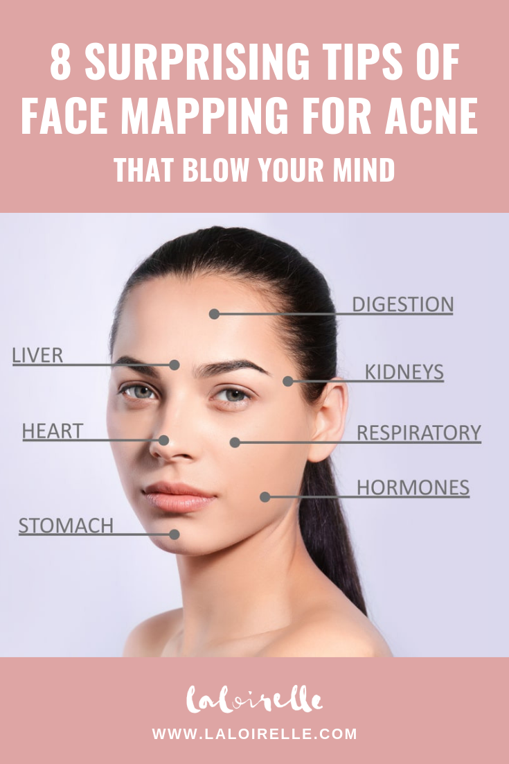 8-Surprising-Tips-of-Face-Mapping-for-Acne-that-Blow-Your-Mind
