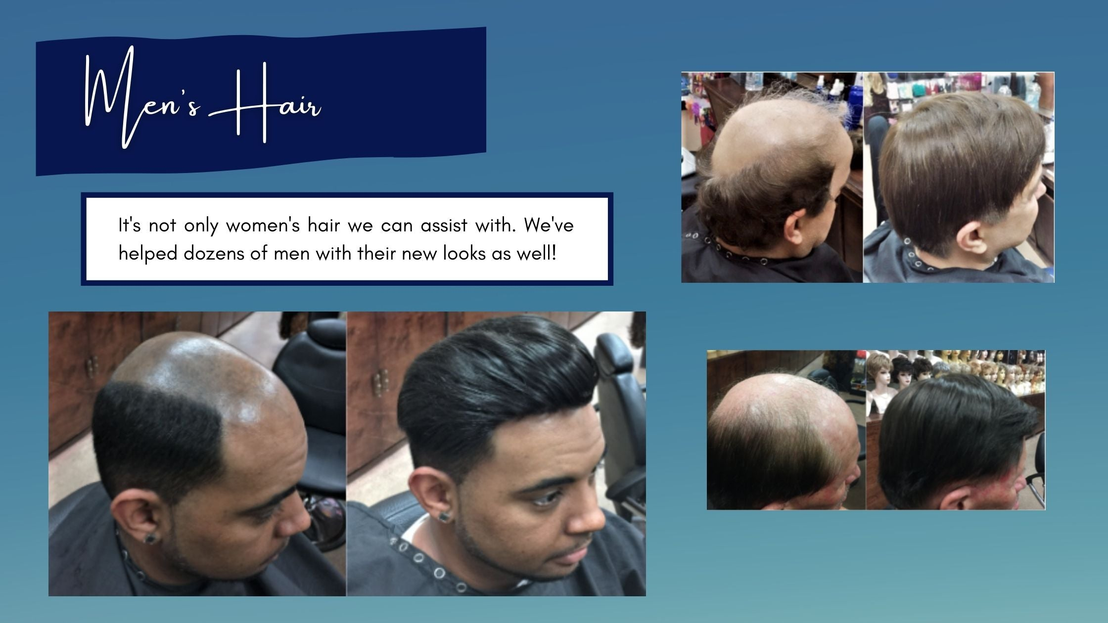 before and after pictures of balding men with new mens hair pieces at wig ave