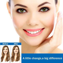Load image into Gallery viewer, Magic Smile Teeth Brace - mygeniusgift