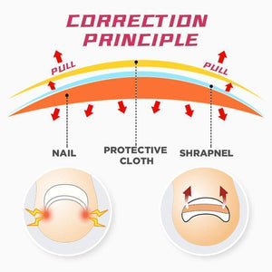 Ingrown Toenails Correction Patch