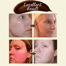 Load image into Gallery viewer, Pro-Herbal Refining Peel-Off Mask