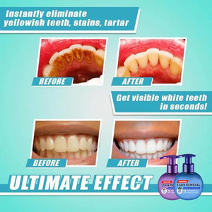 【Last Day 50% Promotion】Intensive Stain Removal Whitening Toothpaste