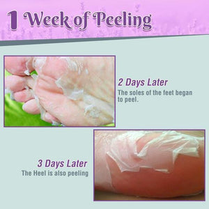 Deep Hydration Lavender Foot Peeling mask