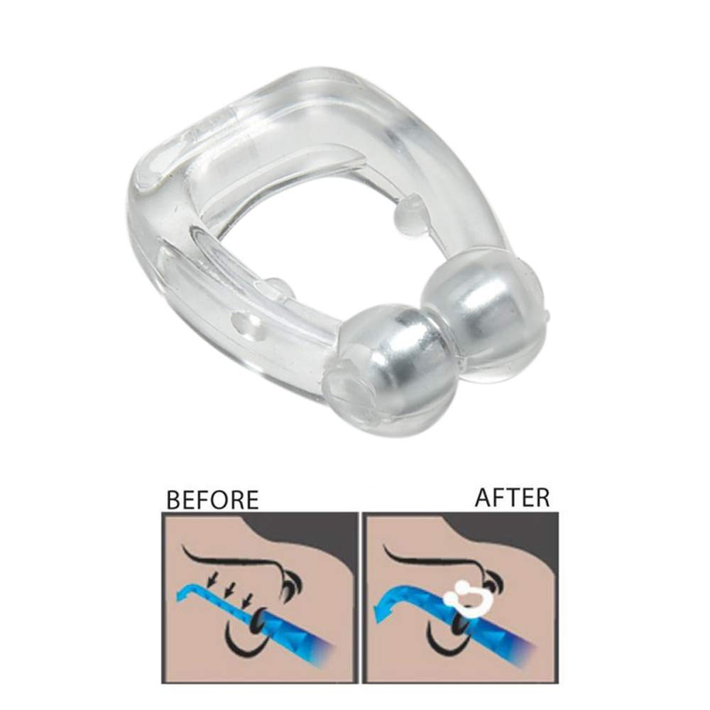 StopSnore Anti-Snoring Device