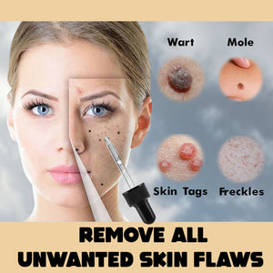 CLEAR™ Moles and Tags Removal