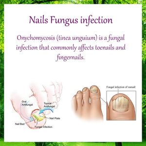 Ginger Nail Essential Oil