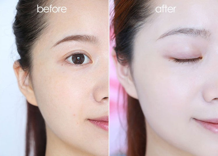 VC Whitening Freckle Curing Cream