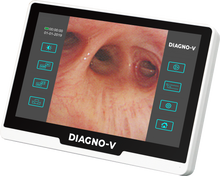 Load image into Gallery viewer, Wireless Portable Flat Panel Detector for Digital Radiography