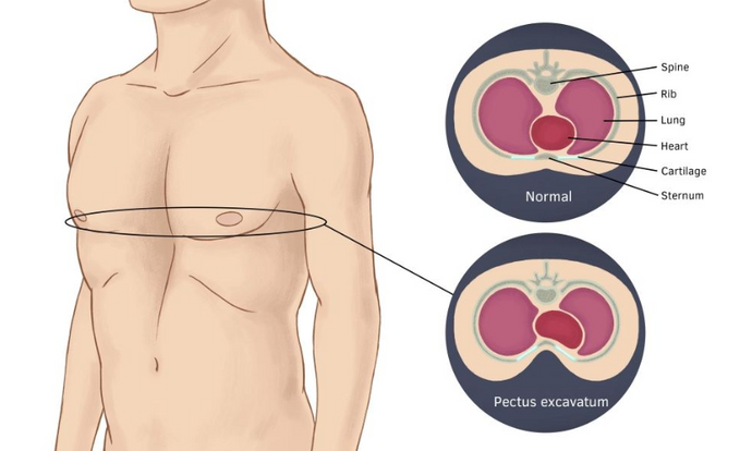 What to know about Funnel Chest (Pectus Excavatum)