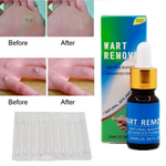 Effective Medical Skin Tag Mole Wart Remover