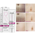 Natural Mild Non-irritating Mango Stretch Mark Cream For Pregnancy Repair Scar