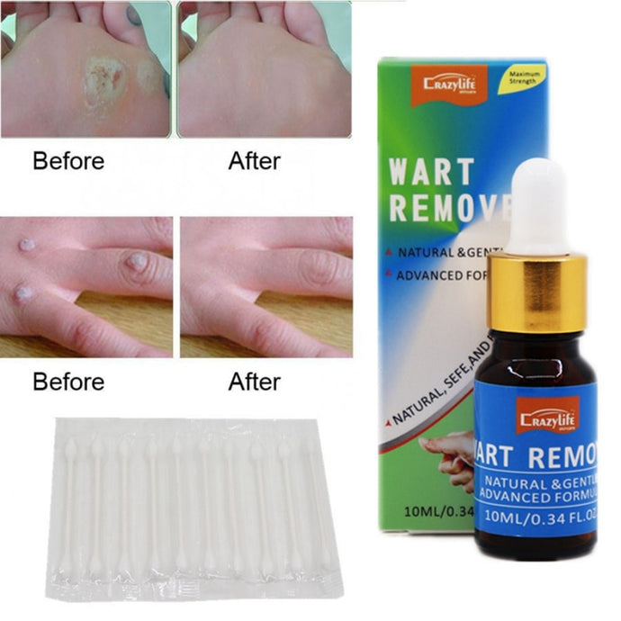 New Skin Tags Mole Foot Corn Warts Treatment Pressure Foot Patch Removal