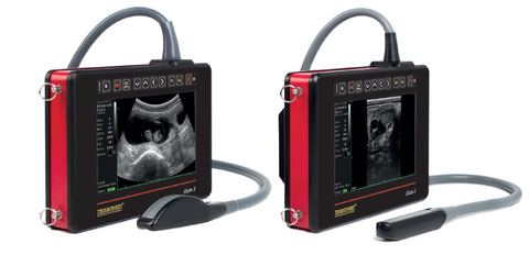 Battery - iScan 2 Portable Ultrasound Systems|Batterie pour l'échographie iScan 2