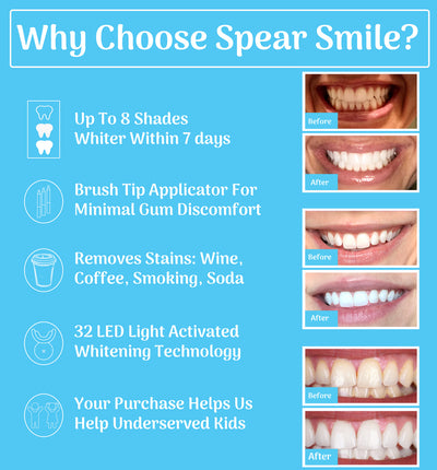 SpearSmile Luxury Home Whitening System