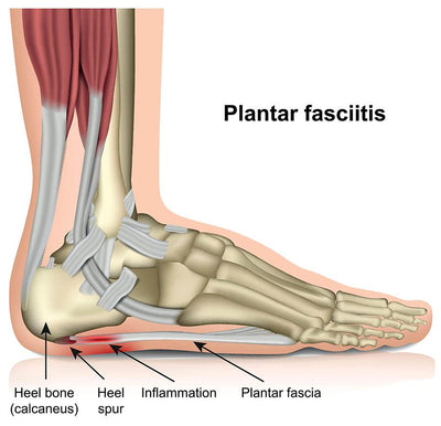 What is Plantar Fasciitis?