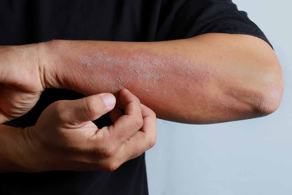 Getting to Know the Causes of Eczema and How to Prevent It