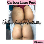 Carbon Laser Peel (Hollywood Facial)
