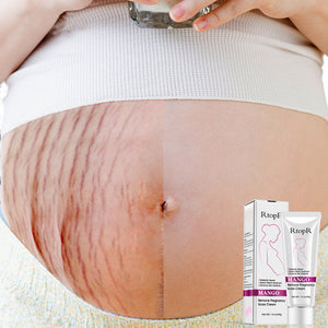 SkinFirm Maternity Stretch Mark Repair Cream