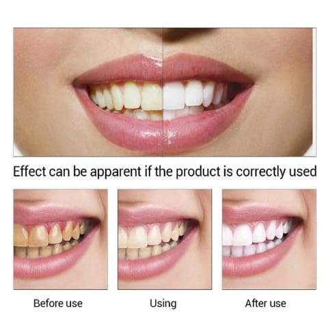 Lanbena Teeth Whitening Essence