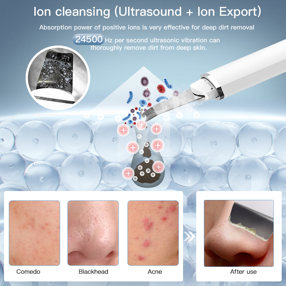 Anlan Painless Hair Remover Device