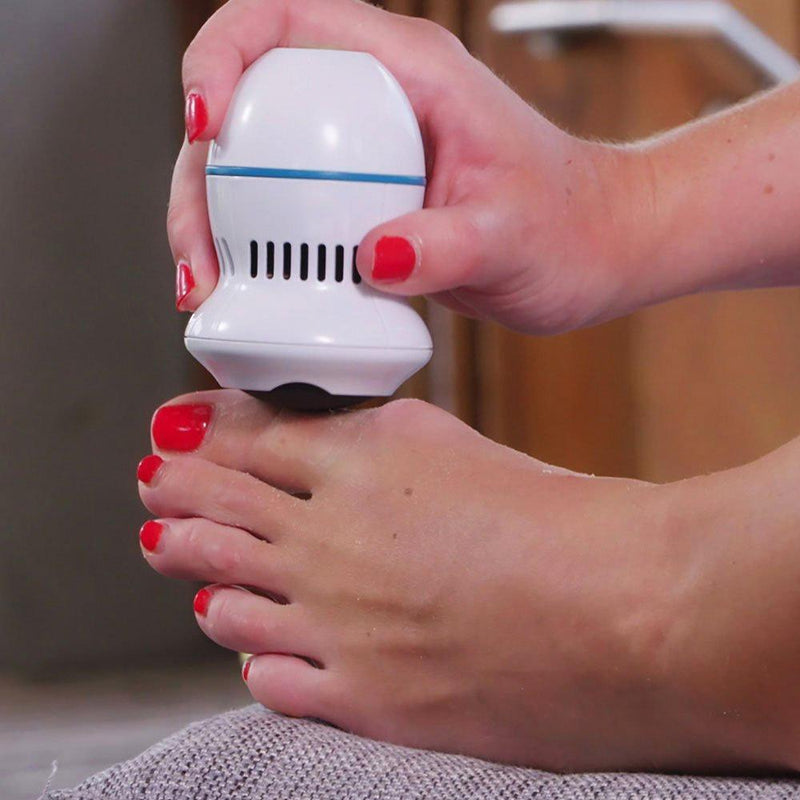 Hirundo Foot File and Callus Remover