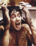 DAVID NAUGHTON as David Kessler - An American Werewolf In London
