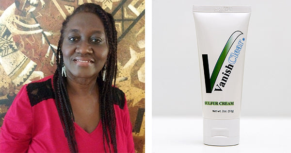 Editors note: Black Mom Solves Fungal Skin Infection Problem Called Tinea Versicolor