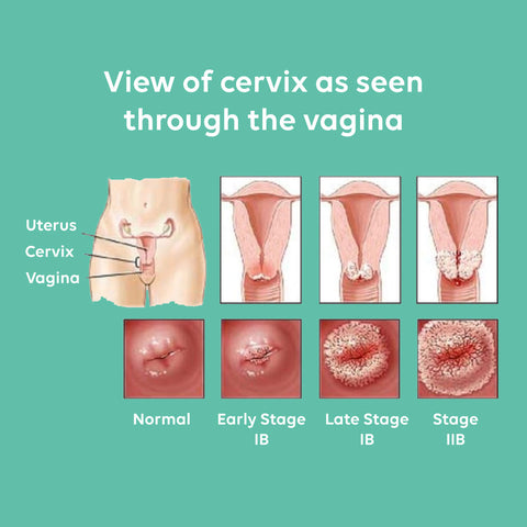 Importance of Sexual Health