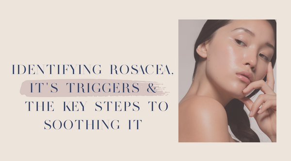 Identifying Rosacea, it's triggers and the key steps to soothing it